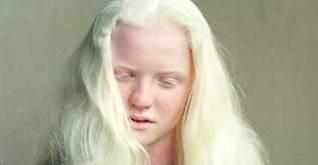 UZ student wins Miss Albinism