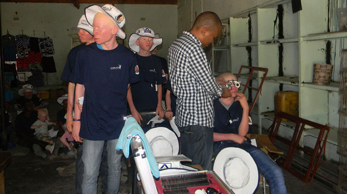 Zimplats offer hope to Binga's albino community
