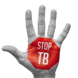 Government must up fight against TB - Zimbabwe Situation