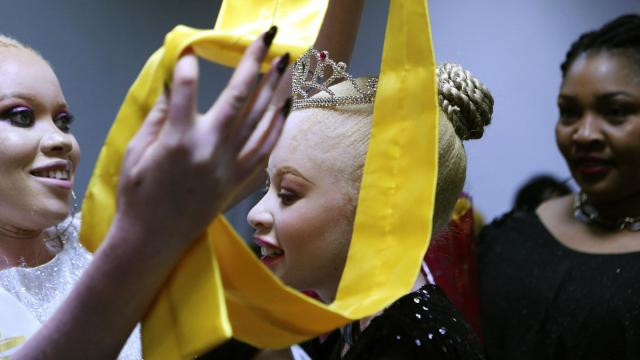 Ayanda Sibanda smiles, after being crowned Miss Albinism Zimbabwe 2019 at an albino pageant held in Harare, early Saturday, May 25, 2019. About 70,000 of Zimbabwe's estimated 16 million people are born with albinism, according to government figures. They often stand out, making them a subject at times of discrimination, ridicule and dangerously misguided beliefs. The Mr. and Miss Albinism Zimbabwe competition, now in its second year, is a chance to push back. (AP Photo/Tsvangirayi Mukwazhi)